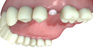 1. The-Gingiva-Clix-serves-as-healing-cap-to-contour-the-gingiva-around-the-implant._535-4