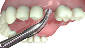 2. After-7-weeks-at-the-earliest--the-Gingiva-Clix-is-..._536-4